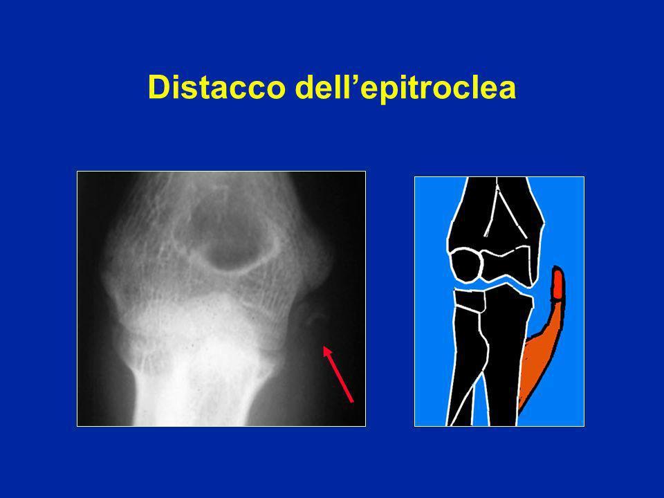 Interposizione possibile dellepitroclea I muscoli epitrocleari attirano il frammento che basculla Nei grandi spostamenti :eventuale compressione del N.