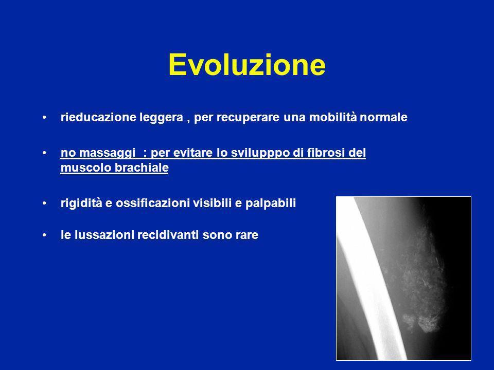 Nei casi di fratture scomposte : osteosintesi con una vite