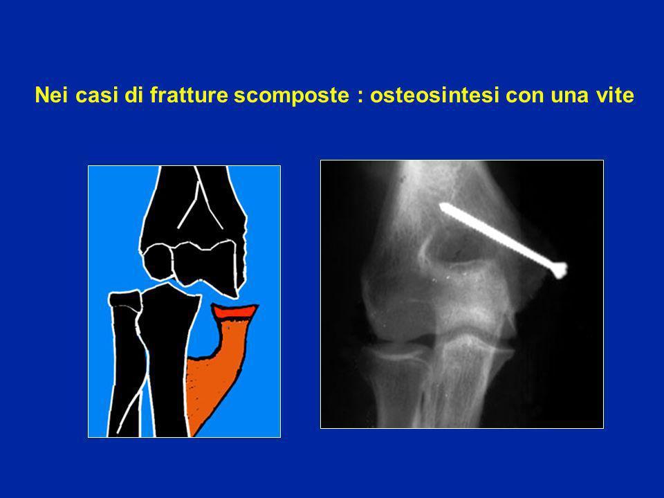 Nei casi di fratture scomposte dellapofisi coronoide: osteosintesi