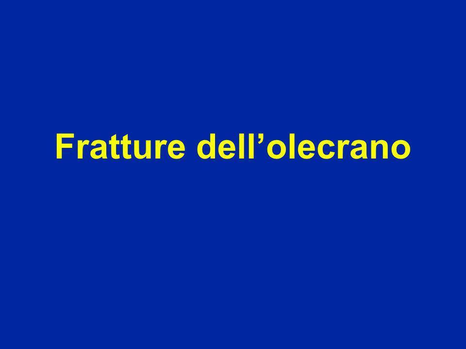 Trauma diretto (+ spesso) Scomposizione per la trazione esercitata dal tricipite Estensione attiva impossibile Palpazione : dolore : frammento mobile