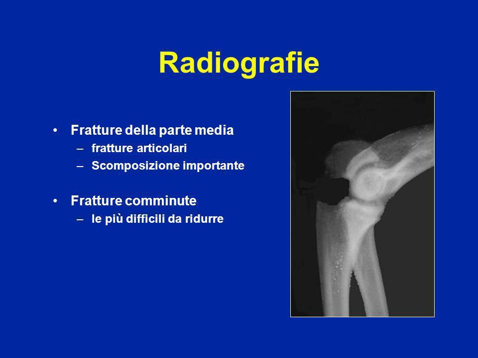 Trattamento Senza spostamento : gesso semplice per 3 settimane Spostamento : Osteosintesi con vite, placca o hauban