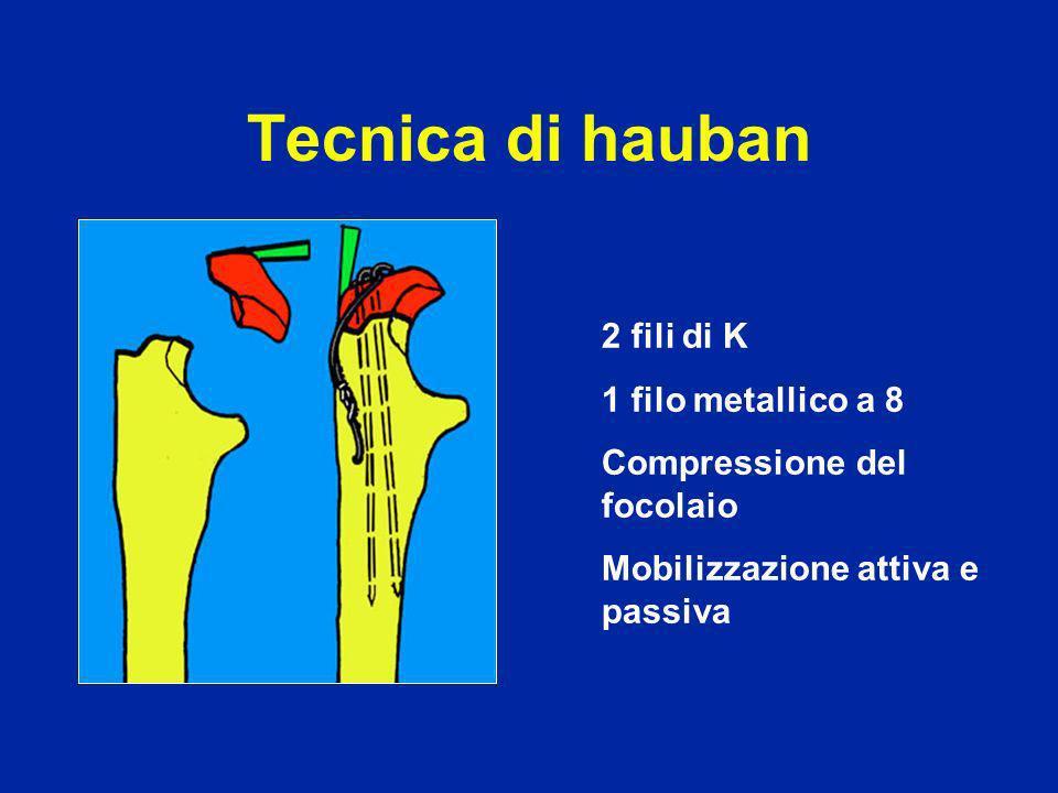 Tecnica di hauban 2 Fili di K 1 filo metallico a 8 Compressione del focolaio Mobilizzazione attiva e passiva