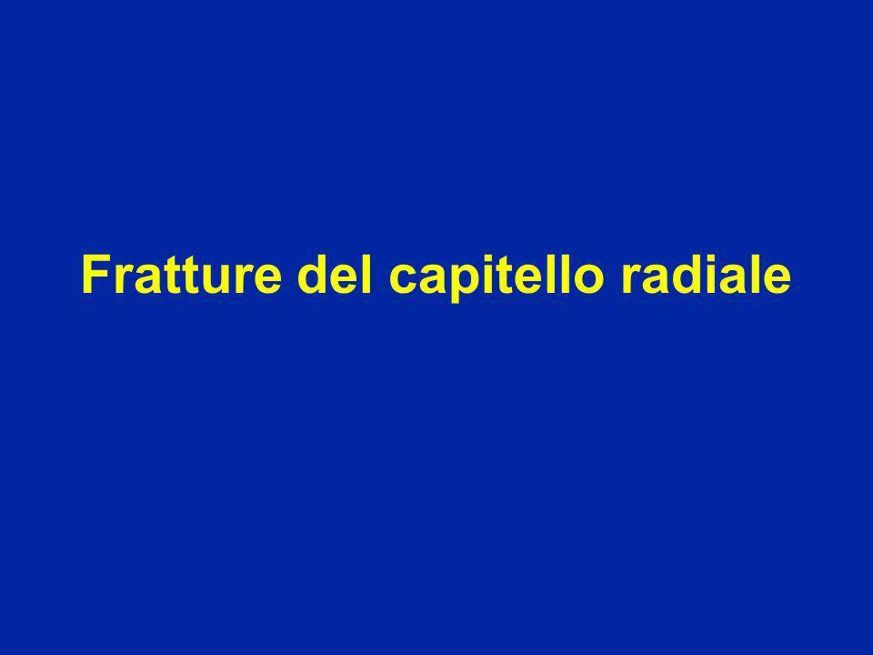 Caduta sulla mano Frattura del collo del radio Frattura del capitello radiale Fratture del capitello radiale