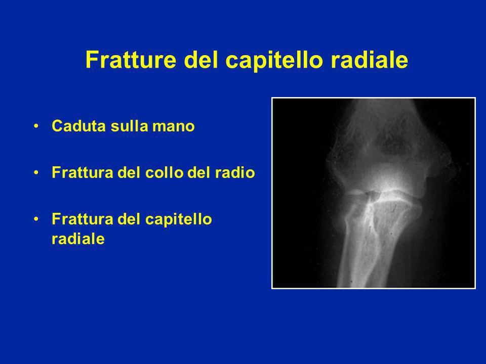 Fratture del collo del radio nel bambino 4 stadi di spostamento possibile riduzione con manovre ortopediche (gesso per 3 settimane) Stadio 4 : riduzione chirurgica e fili