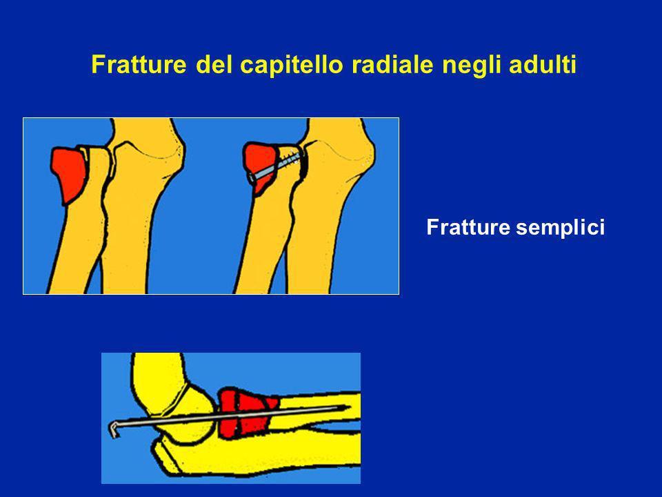 Fratture del capitello radiale negli adulti Fratture semplici