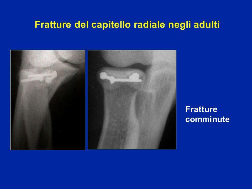 Rischio di disturbi secondari della prono-supinazione Irrigidimento fibroso Callo vizioso Ossificazioni che bloccano articolazione radio ulnare superiore