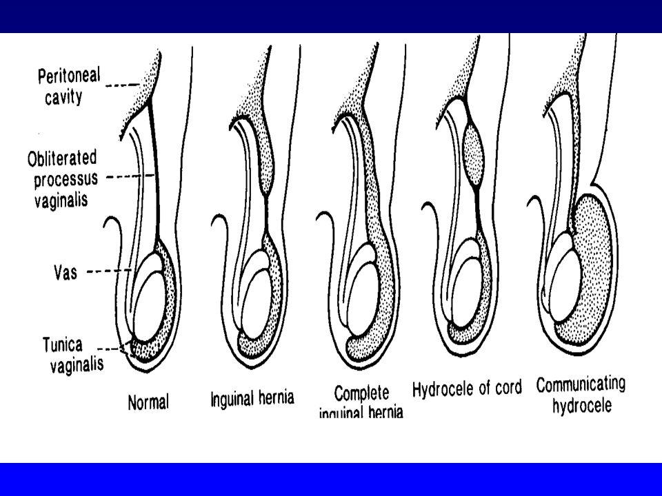 ERNIA INGUINALE- CRIPTORCHIDISMO: PATOGENESI MOVIMENTO TRANS - ADDOMINALE (MIF) 12 SETTIMANA : MOVIMENTO TRANS -INGUINALE ( TESTOSTERONE ) I TESTICOLI