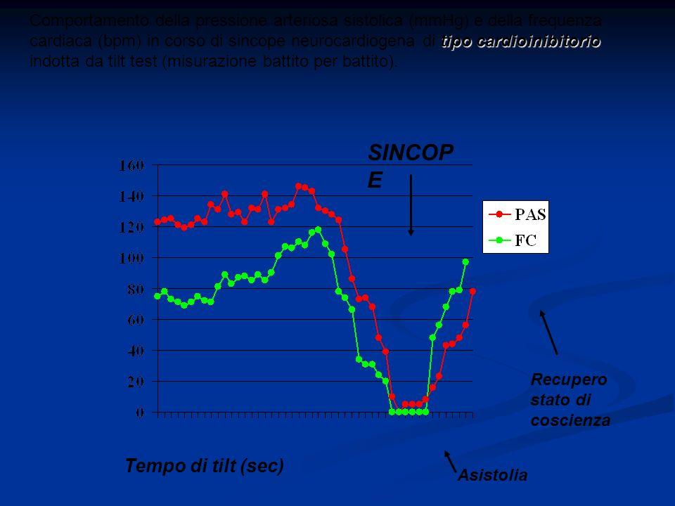 SINCOP E Tempo di tilt (sec) tipo cardioinibitorio Comportamento della pressione arteriosa sistolica (mmHg) e della frequenza cardiaca (bpm) in corso