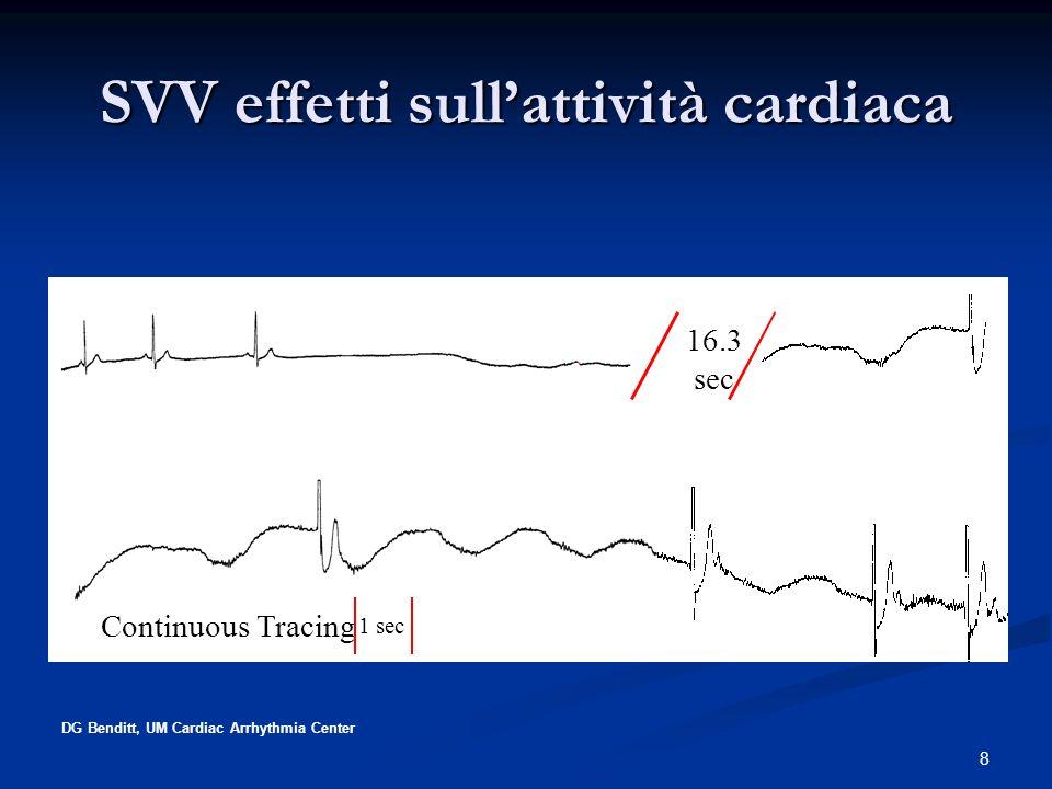 8 DG Benditt, UM Cardiac Arrhythmia Center 16.3 sec Continuous Tracing 1 sec SVV effetti sullattività cardiaca