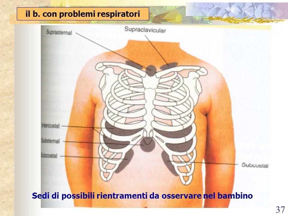 37 il b. con problemi respiratori Sedi di possibili rientramenti da osservare nel bambino