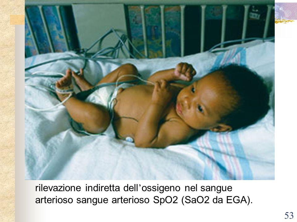 53 rilevazione indiretta dell ossigeno nel sangue arterioso sangue arterioso SpO2 (SaO2 da EGA).