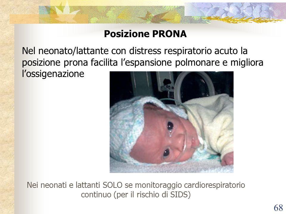 68 Posizione PRONA Nel neonato/lattante con distress respiratorio acuto la posizione prona facilita lespansione polmonare e migliora lossigenazione Ne