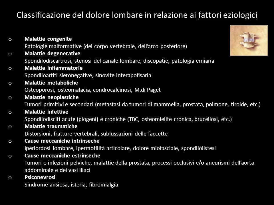 o Malattie congenite Patologie malformative (del corpo vertebrale, dellarco posteriore) o Malattie degenerative Spondilodiscartrosi, stenosi del canale lombare, discopatie, patologia erniaria o Malattie infiammatorie Spondiloartiti sieronegative, sinovite interapofisaria o Malattie metaboliche Osteoporosi, osteomalacia, condrocalcinosi, M.di Paget o Malattie neoplastiche Tumori primitivi e secondari (metastasi da tumori di mammella, prostata, polmone, tiroide, etc.) o Malattie infettive Spondilodisciti acute (piogeni) e croniche (TBC, osteomielite cronica, brucellosi, etc.) o Malattie traumatiche Distorsioni, fratture vertebrali, sublussazioni delle faccette o Cause meccaniche intrinseche Iperlordosi lombare, ipermotilità articolare, dolore miofasciale, spondilolistesi o Cause meccaniche estrinseche Tumori o infezioni pelviche, malattie della prostata, processi occlusivi e/o aneurismi dellaorta addominale e dei vasi iliaci o Psiconevrosi Sindrome ansiosa, isteria, fibromialgia Classificazione del dolore lombare in relazione ai fattori eziologici
