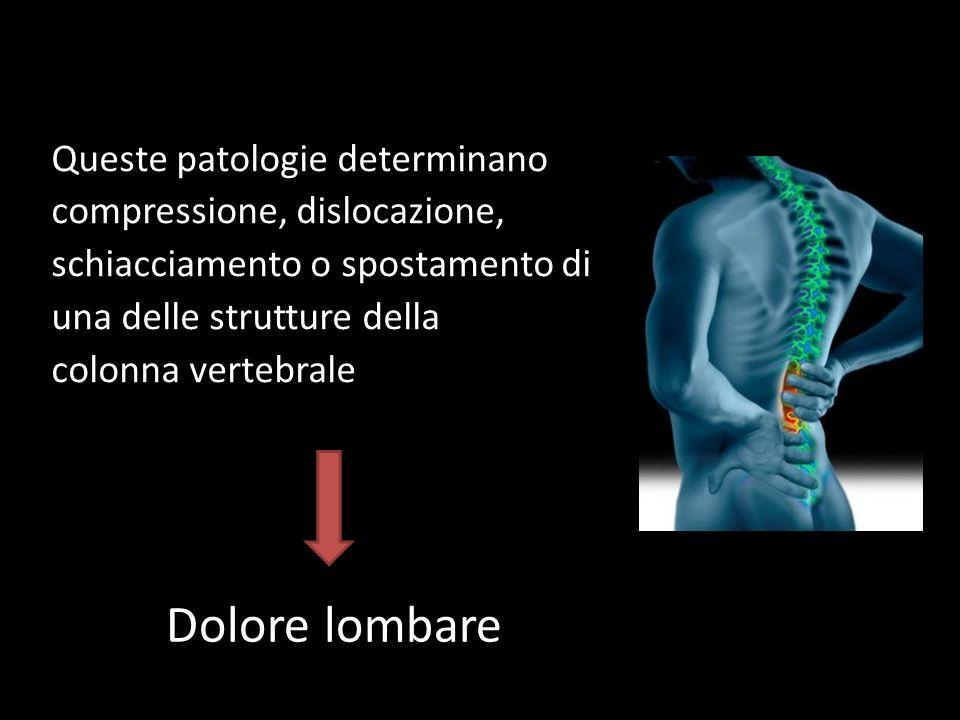 Queste patologie determinano compressione, dislocazione, schiacciamento o spostamento di una delle strutture della colonna vertebrale Dolore lombare