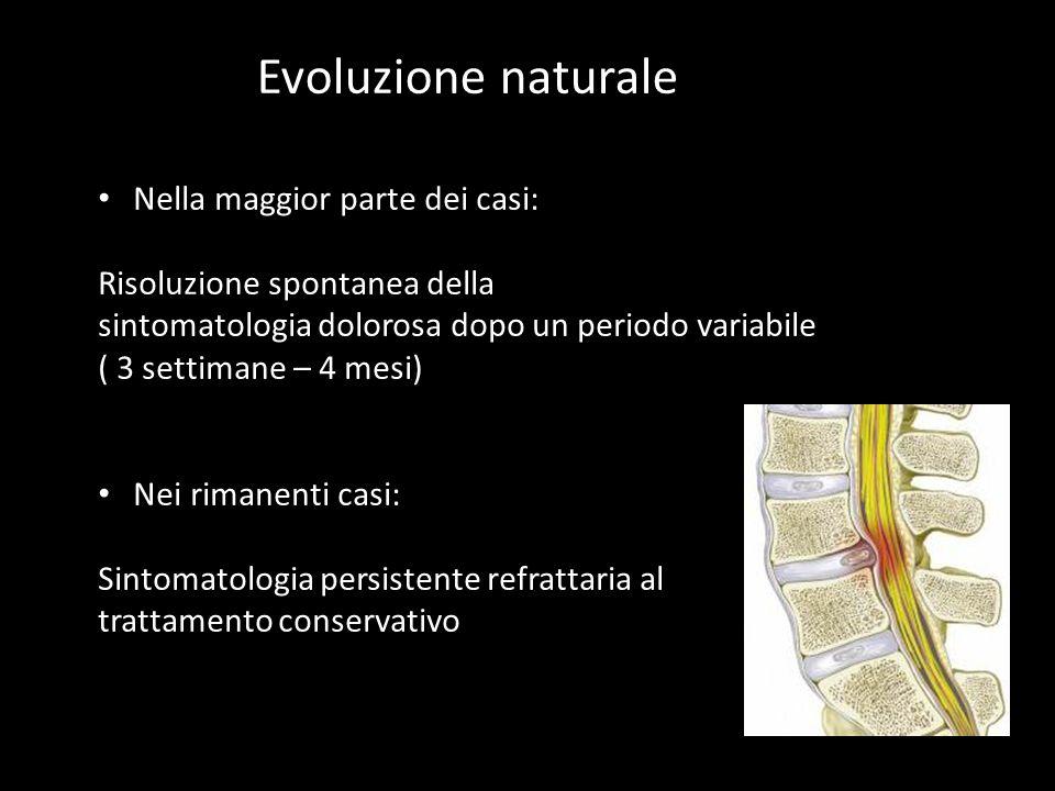 Evoluzione naturale Nella maggior parte dei casi: Risoluzione spontanea della sintomatologia dolorosa dopo un periodo variabile ( 3 settimane – 4 mesi) Nei rimanenti casi: Sintomatologia persistente refrattaria al trattamento conservativo