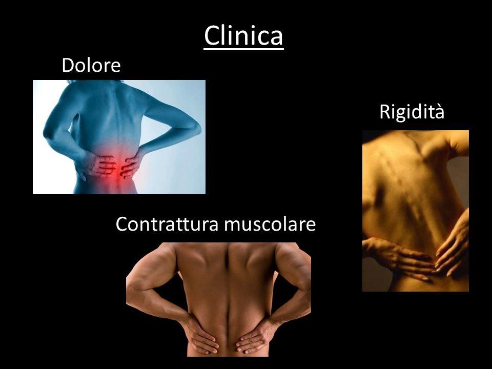Dolore Clinica Contrattura muscolare Rigidità