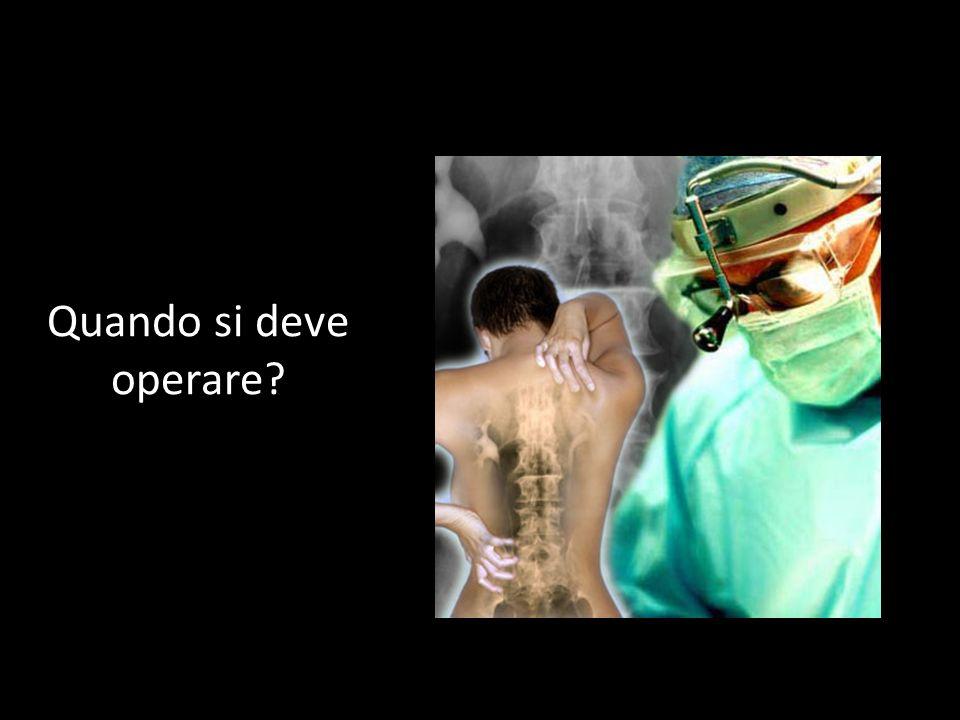 Quando si deve operare?