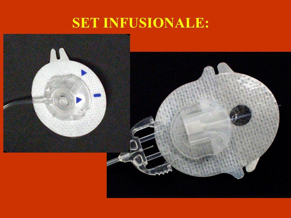 SET INFUSIONALE: È composto da un catetere e una cannula sottile e flessibile che eroga linsulina dal microinfusore allorganismo. La cannula viene ins
