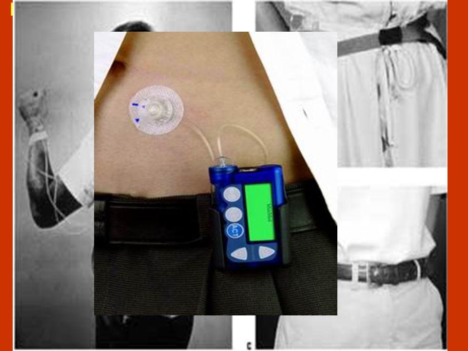 Dopo circa quarantanni dalla sua introduzione, luso, a livello mondiale, del microinfusore d insulina (CSII) è notevolmente aumentato….