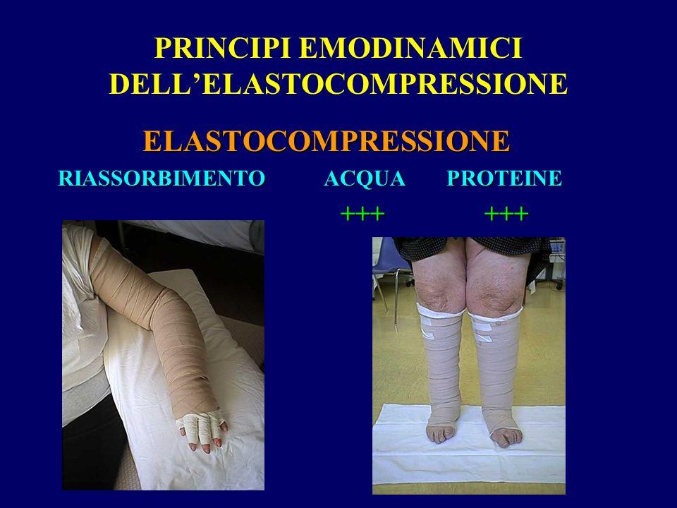 PRINCIPI EMODINAMICI DELLELASTOCOMPRESSIONE ELASTOCOMPRESSIONE ELASTOCOMPRESSIONE RIASSORBIMENTO ACQUA PROTEINE +++ +++ +++ +++
