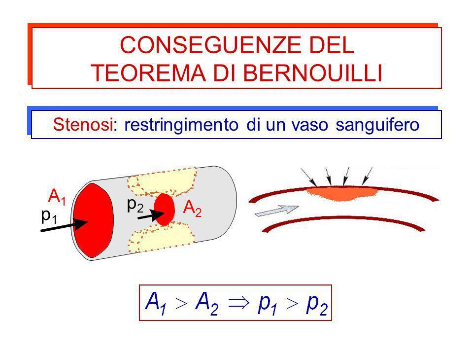 CONSEGUENZE DEL TEOREMA DI BERNOUILLI CONSEGUENZE DEL TEOREMA DI BERNOUILLI A2A2 A1A1 p1p1 p2p2 Stenosi: restringimento di un vaso sanguifero