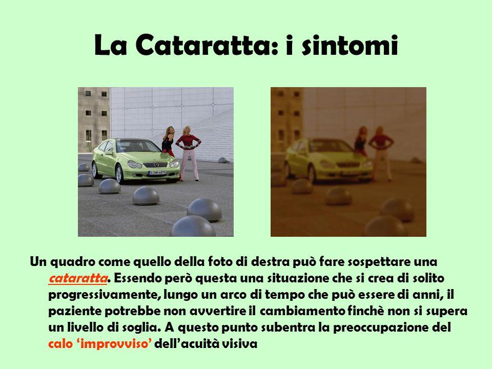 La Cataratta: i sintomi Un quadro come quello della foto di destra può fare sospettare una cataratta. Essendo però questa una situazione che si crea d
