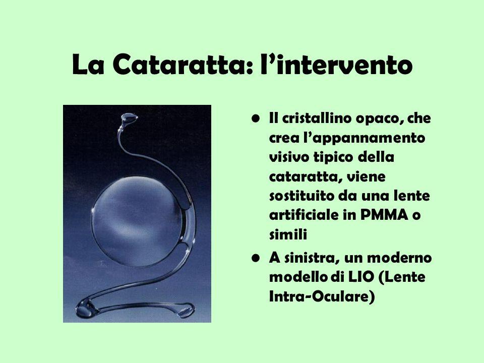 La Cataratta: lintervento Il cristallino opaco, che crea lappannamento visivo tipico della cataratta, viene sostituito da una lente artificiale in PMM