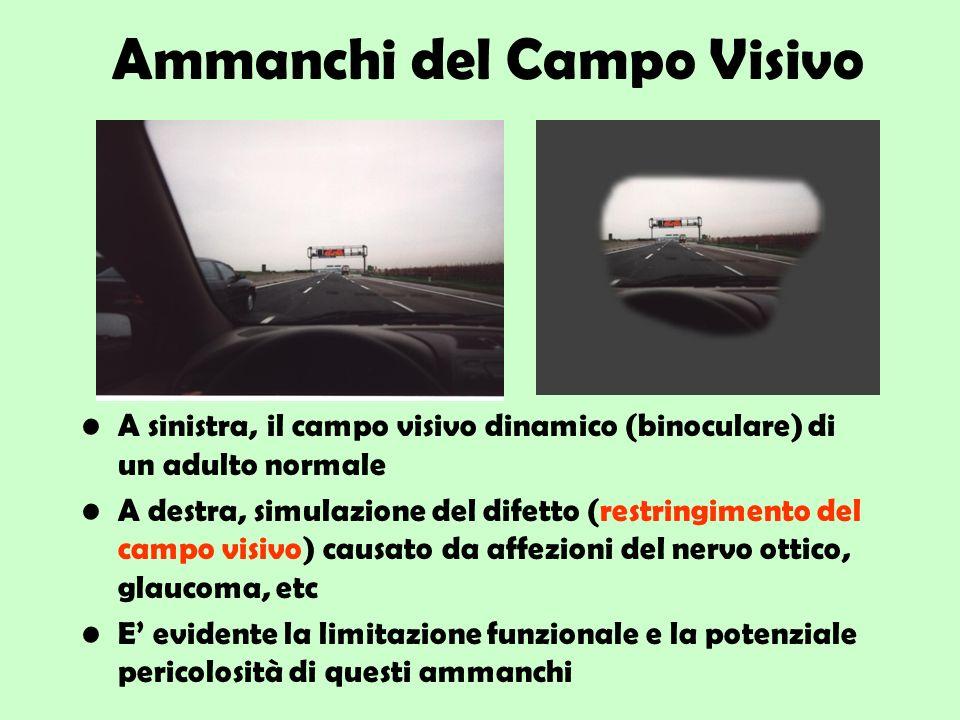 Ammanchi del Campo Visivo A sinistra, il campo visivo dinamico (binoculare) di un adulto normale A destra, simulazione del difetto (restringimento del