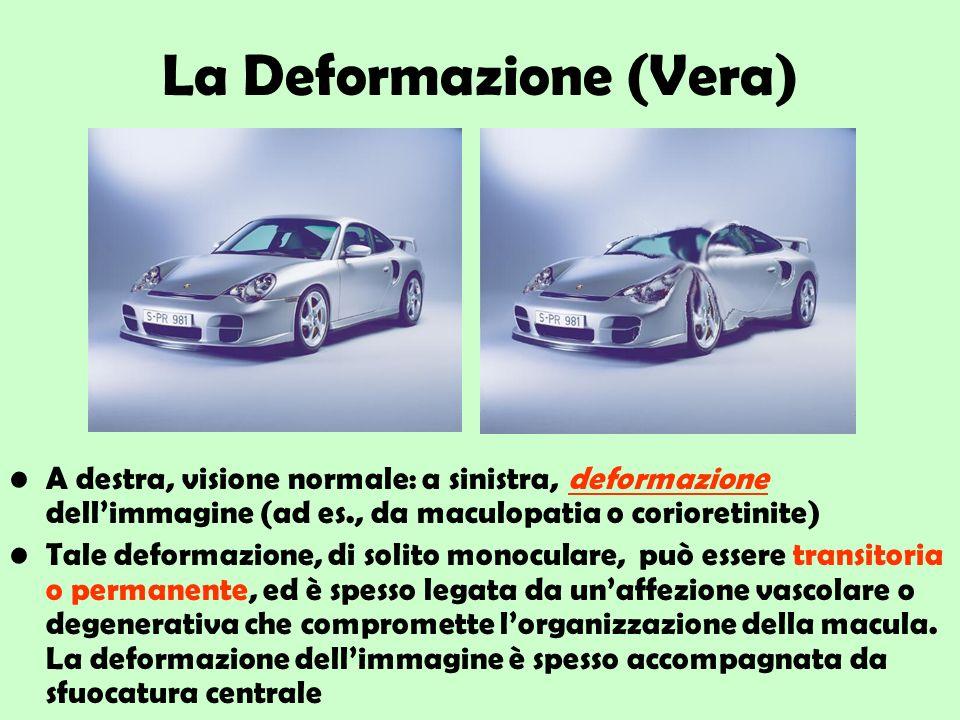 La Deformazione (Vera) A destra, visione normale: a sinistra, deformazione dellimmagine (ad es., da maculopatia o corioretinite) Tale deformazione, di
