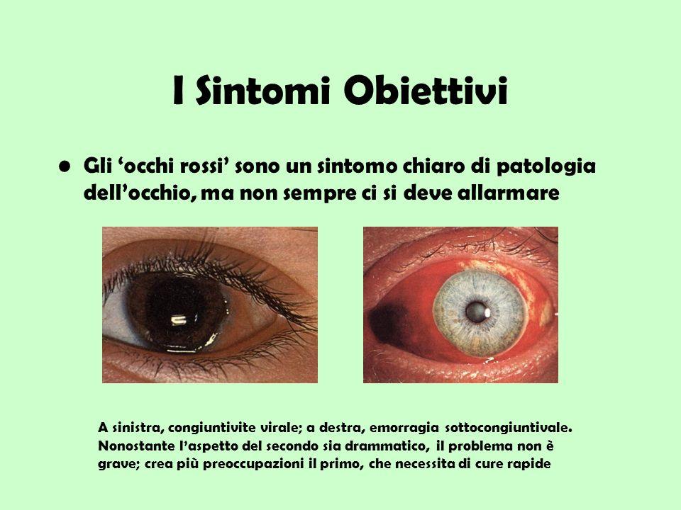 I Sintomi Obiettivi Gli occhi rossi sono un sintomo chiaro di patologia dellocchio, ma non sempre ci si deve allarmare A sinistra, congiuntivite viral