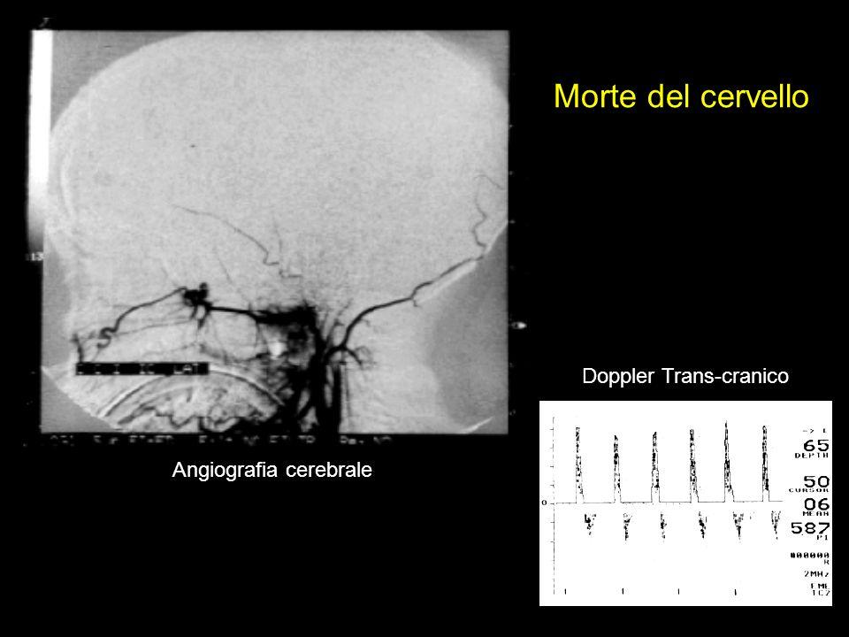 Angiografia cerebrale Doppler Trans-cranico Morte del cervello