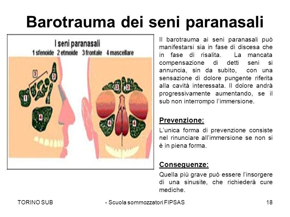 Barotrauma dei seni paranasali Il barotrauma ai seni paranasali può manifestarsi sia in fase di discesa che in fase di risalita. La mancata compensazi