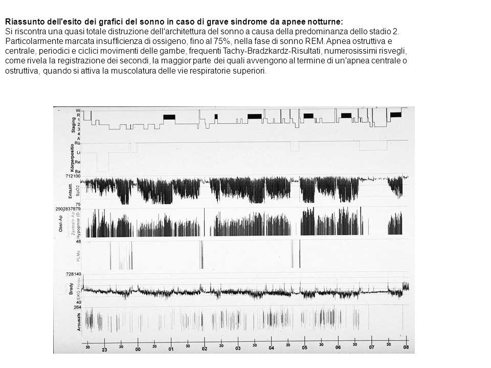 Riassunto dell'esito dei grafici del sonno in caso di grave sindrome da apnee notturne: Si riscontra una quasi totale distruzione dell'architettura de