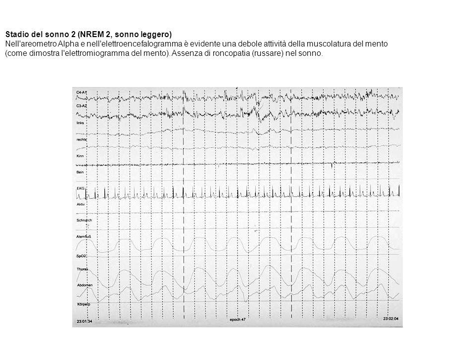 Stadio del sonno 2 (NREM 2, sonno leggero) Nell'areometro Alpha e nell'elettroencefalogramma è evidente una debole attività della muscolatura del ment