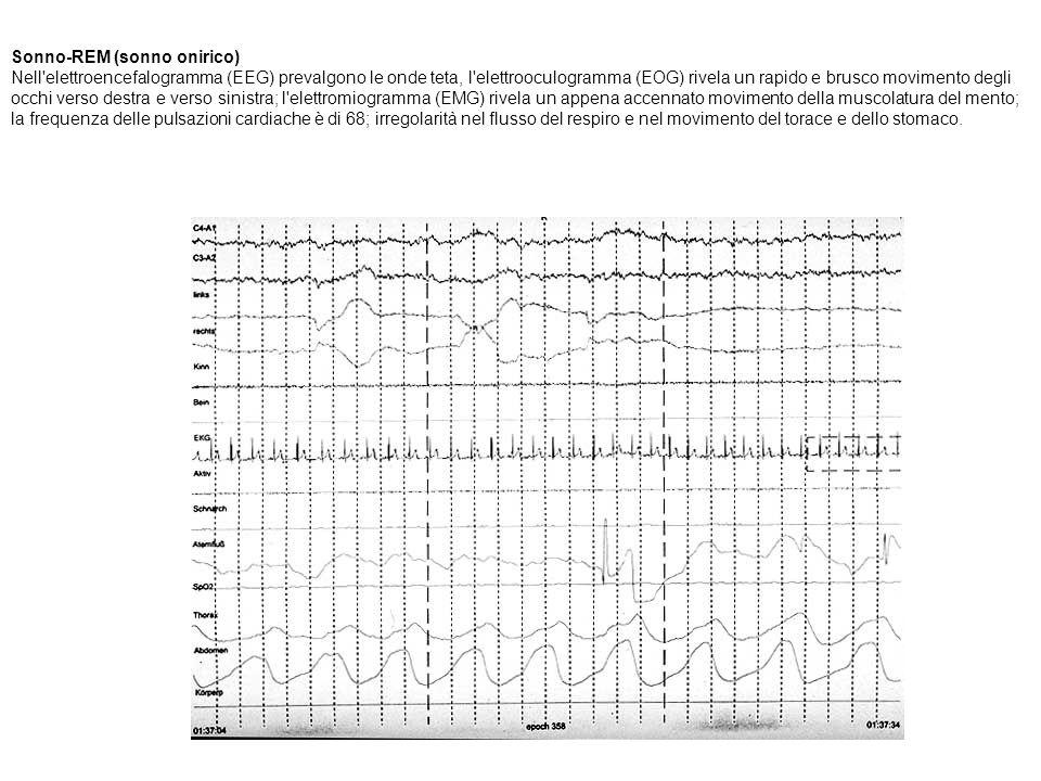 Sonno-REM (sonno onirico) Nell'elettroencefalogramma (EEG) prevalgono le onde teta, l'elettrooculogramma (EOG) rivela un rapido e brusco movimento deg