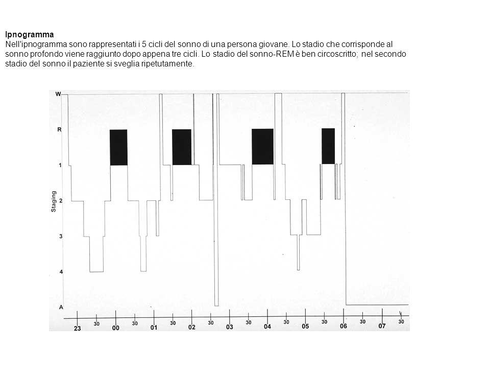 Ipnogramma Nell'ipnogramma sono rappresentati i 5 cicli del sonno di una persona giovane. Lo stadio che corrisponde al sonno profondo viene raggiunto