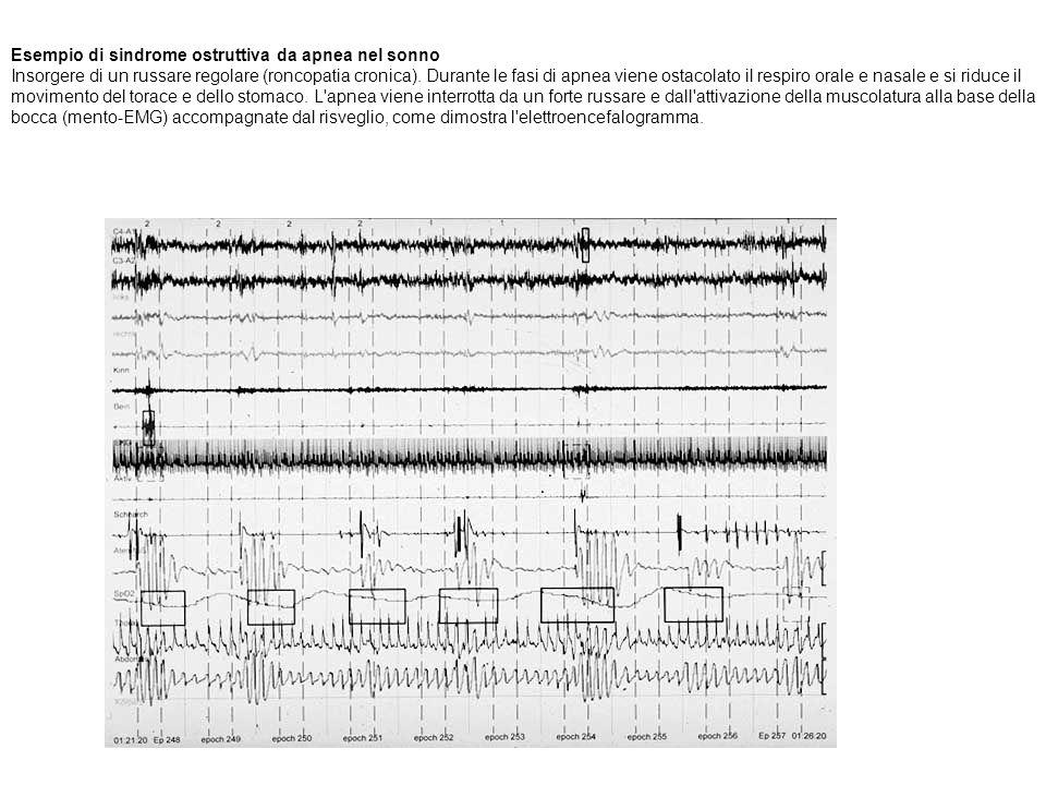 Esempio di sindrome ostruttiva da apnea nel sonno Insorgere di un russare regolare (roncopatia cronica). Durante le fasi di apnea viene ostacolato il