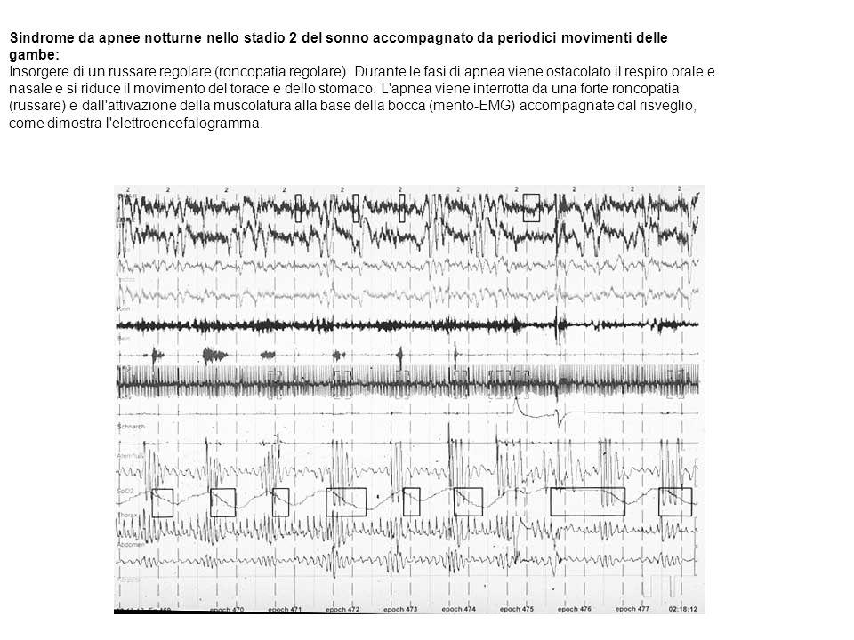 Sindrome da apnee notturne nello stadio 2 del sonno accompagnato da periodici movimenti delle gambe: Insorgere di un russare regolare (roncopatia rego
