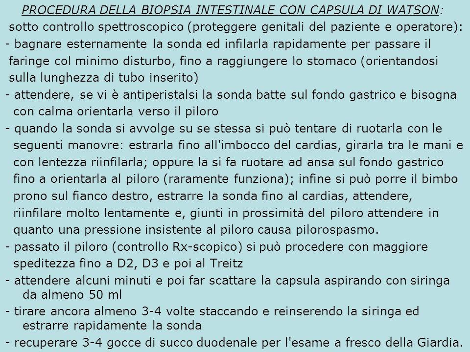 PROCEDURA DELLA BIOPSIA INTESTINALE CON CAPSULA DI WATSON: sotto controllo spettroscopico (proteggere genitali del paziente e operatore): - bagnare es