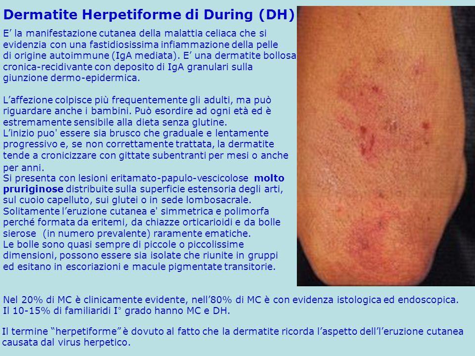 Il termine herpetiforme è dovuto al fatto che la dermatite ricorda laspetto dellleruzione cutanea causata dal virus herpetico. Si presenta con lesioni