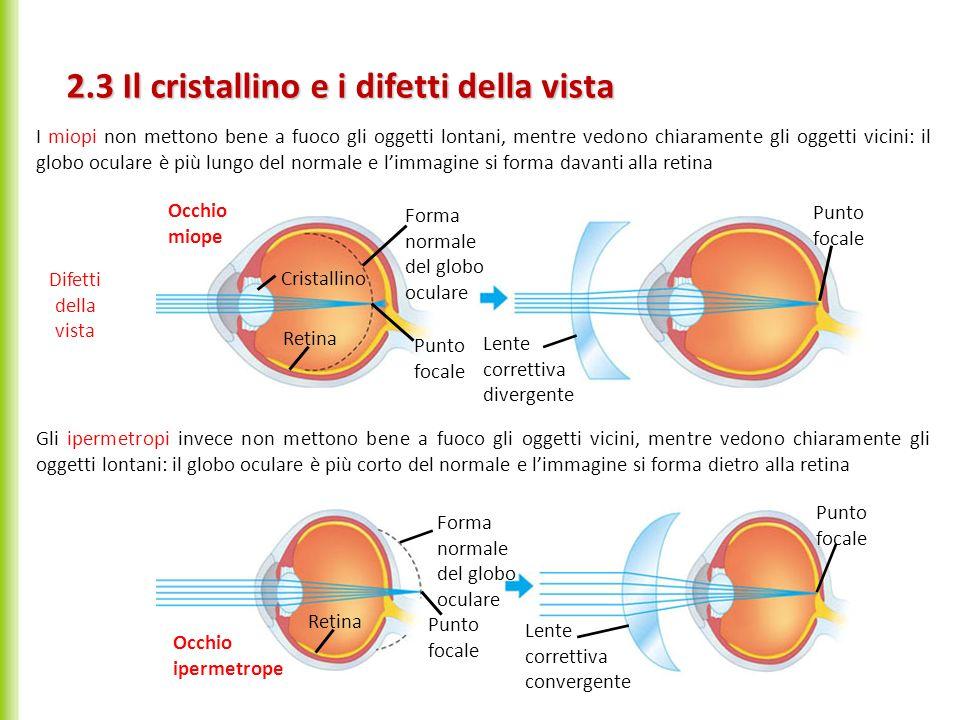 2.3 Il cristallino e i difetti della vista Forma normale del globo oculare Punto focale Cristallino Retina Lente correttiva divergente Punto focale Oc