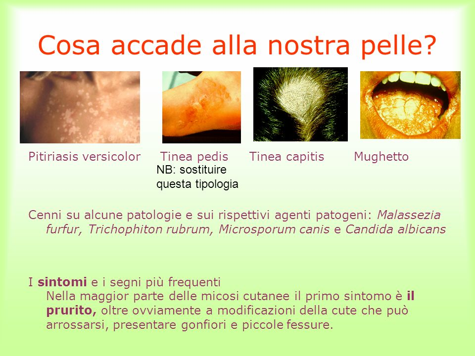 Cosa accade alla nostra pelle? Pitiriasis versicolor Tinea pedis Tinea capitis Mughetto Cenni su alcune patologie e sui rispettivi agenti patogeni: Ma