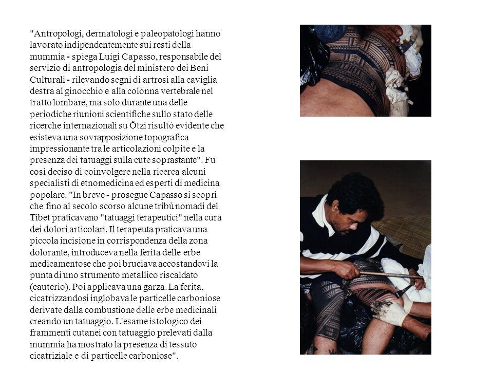 Medicina e Religione Il tatuaggio è nato come cura per l artrosi.