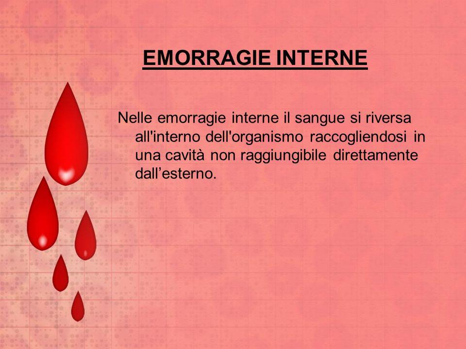EMORRAGIE INTERNE Nelle emorragie interne il sangue si riversa all'interno dell'organismo raccogliendosi in una cavità non raggiungibile direttamente