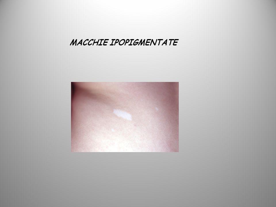 MACCHIE IPOPIGMENTATE