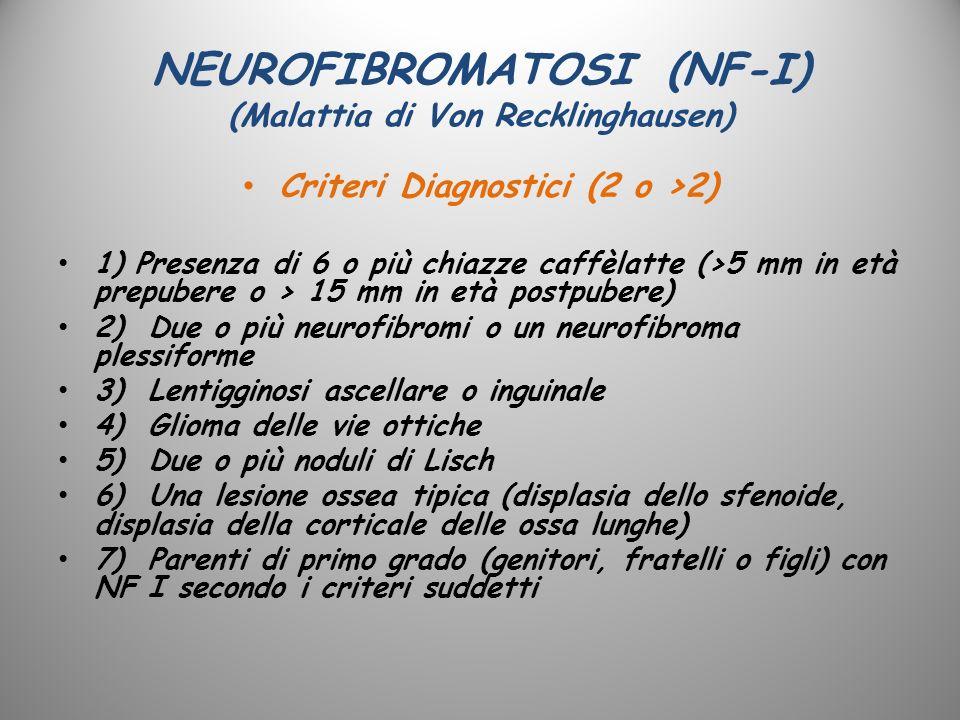 NEUROFIBROMATOSI (NF-I) (Malattia di Von Recklinghausen) Criteri Diagnostici (2 o >2) 1) Presenza di 6 o più chiazze caffèlatte (>5 mm in età prepuber