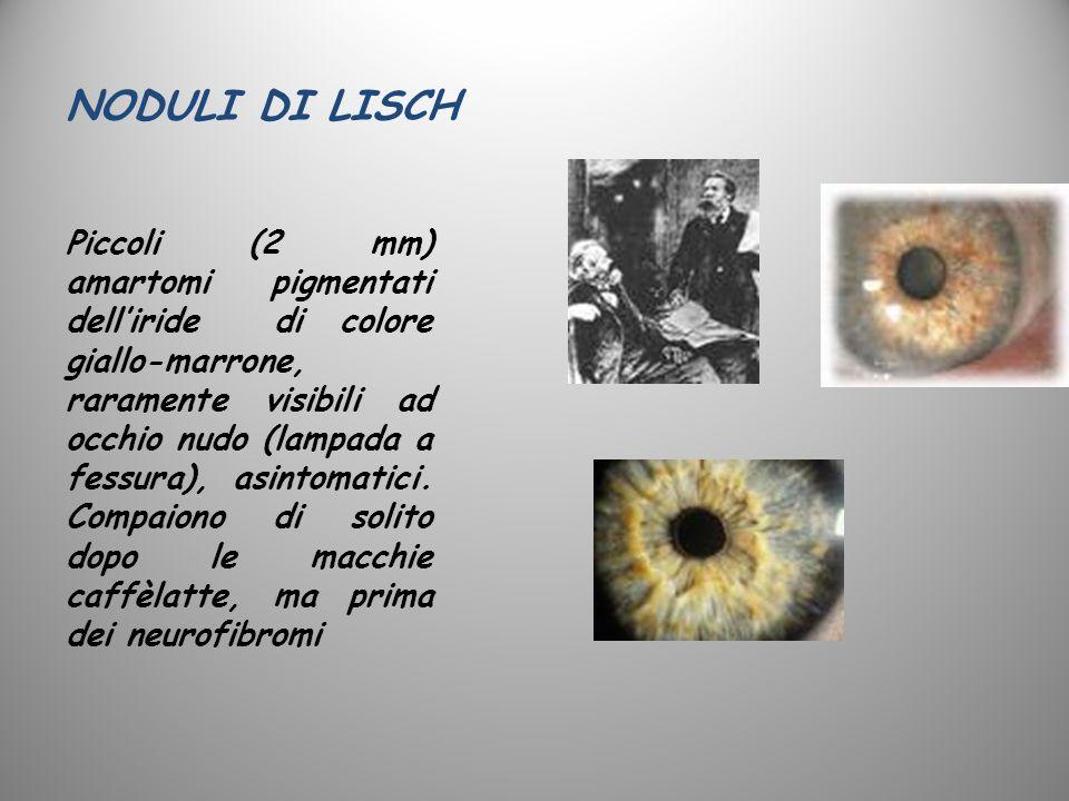 NODULI DI LISCH Piccoli (2 mm) amartomi pigmentati delliride di colore giallo-marrone, raramente visibili ad occhio nudo (lampada a fessura), asintoma