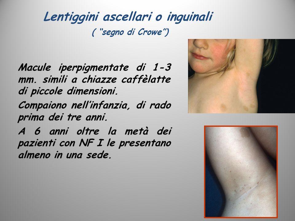 Lentiggini ascellari o inguinali ( segno di Crowe) Macule iperpigmentate di 1-3 mm. simili a chiazze caffèlatte di piccole dimensioni. Compaiono nelli