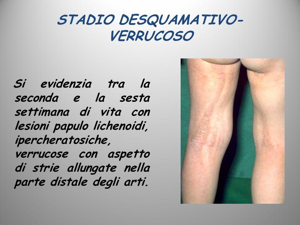 STADIO DESQUAMATIVO- VERRUCOSO Si evidenzia tra la seconda e la sesta settimana di vita con lesioni papulo lichenoidi, ipercheratosiche, verrucose con
