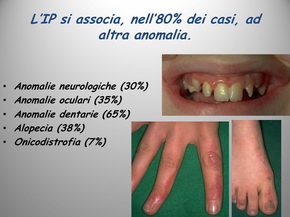 LIP si associa, nell80% dei casi, ad altra anomalia. Anomalie neurologiche (30%) Anomalie oculari (35%) Anomalie dentarie (65%) Alopecia (38%) Onicodi